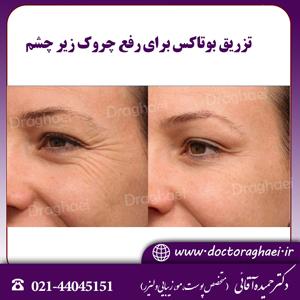 تزریق بوتاکس برای رفع چروک زیر چشم