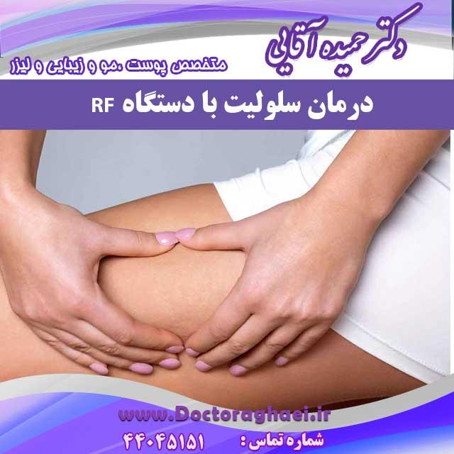 درمان سلولیت با دستگاه RF