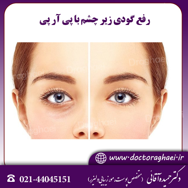 رفع گودی زیر چشم با پی آر پی