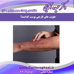 عفونت قارچی پوست