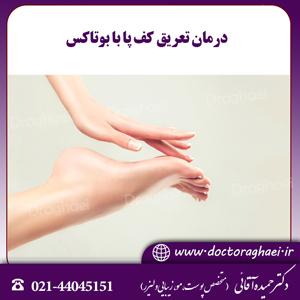 درمان تعریق کف پا با بوتاکس
