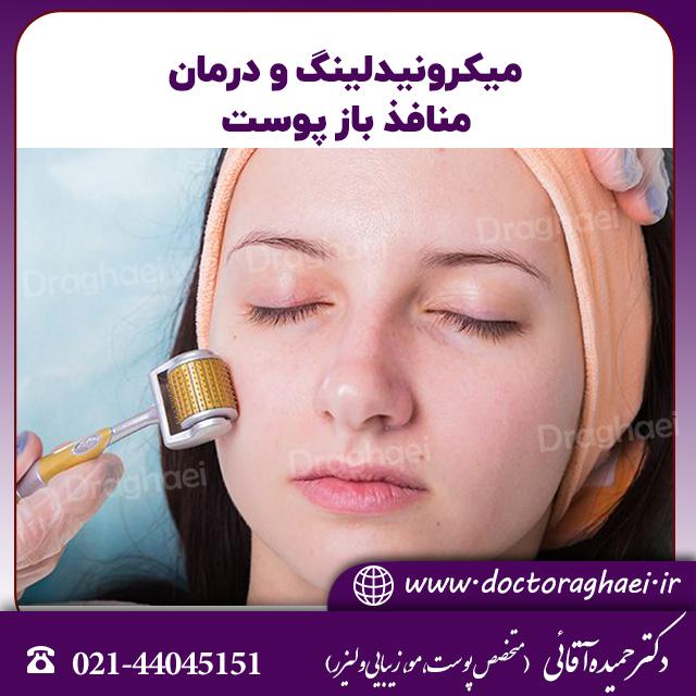 میکرونیدلینگ، روشی موثر برای درمان منافذ باز پوست