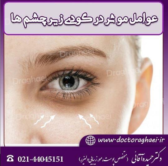 آیا درمان قطعی برای گودی زیر چشم وجود دارد ؟