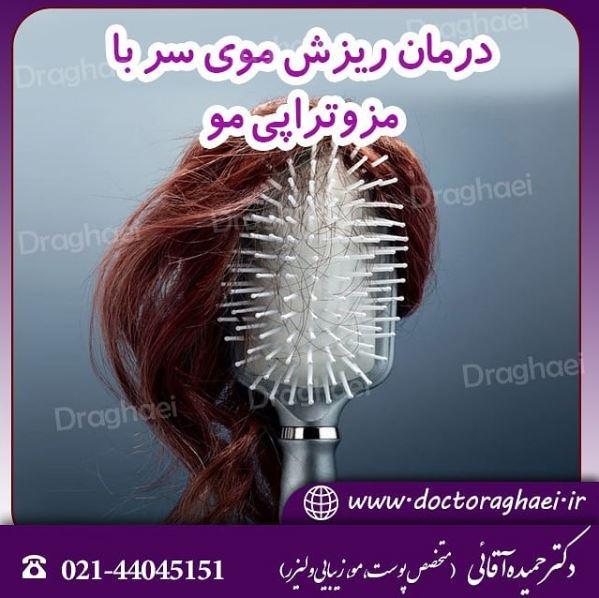 مزوتراپی مو درمانی قطعی برای ریزش مو