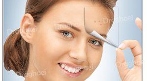 شستن صورت بعد از لیزر فراکشنال